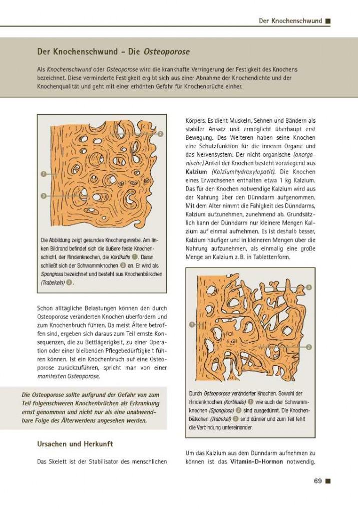 Der Knochenschwund - Die Osteoporose