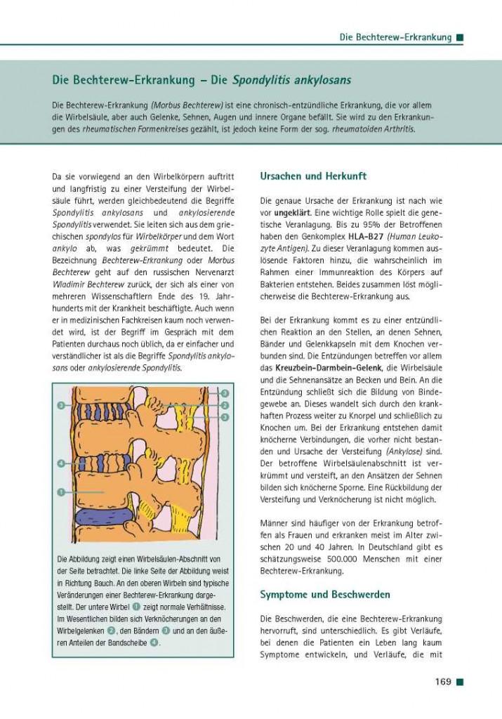 Die Bechterew-Erkrankung - Die Spondylitis ankylosans