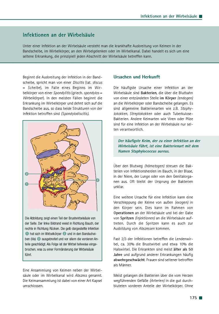 Orthopädie für Patienten | Infektionen an der Wirbelsäule ...