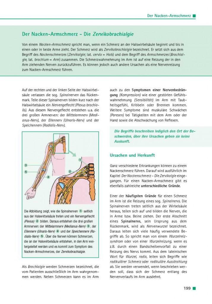 Der Nacken-Armschmerz – Die Zervikobrachialgie