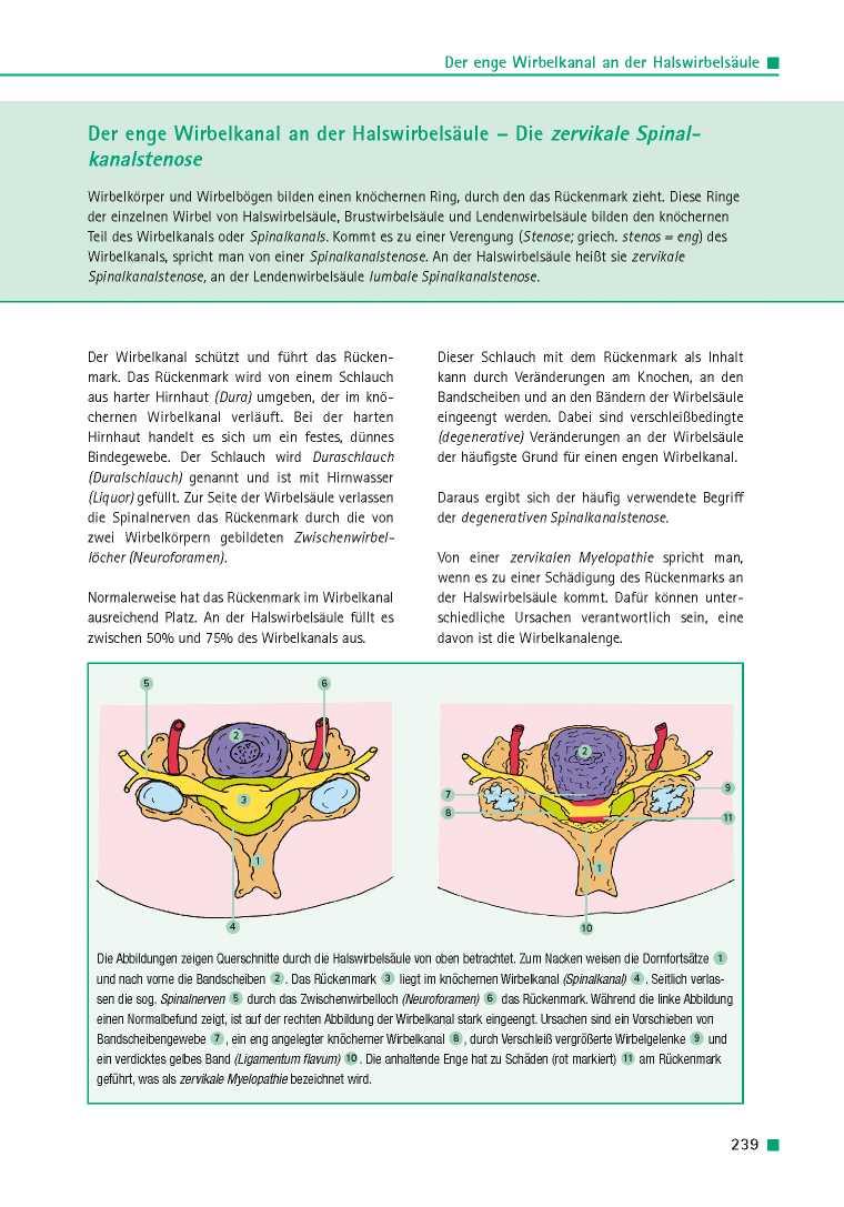 Orthopädie für Patienten | Der enge Wirbelkanal an der ...