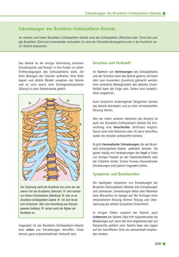 Erkrankungen des Brustbein-Schlüsselbein-Gelenks