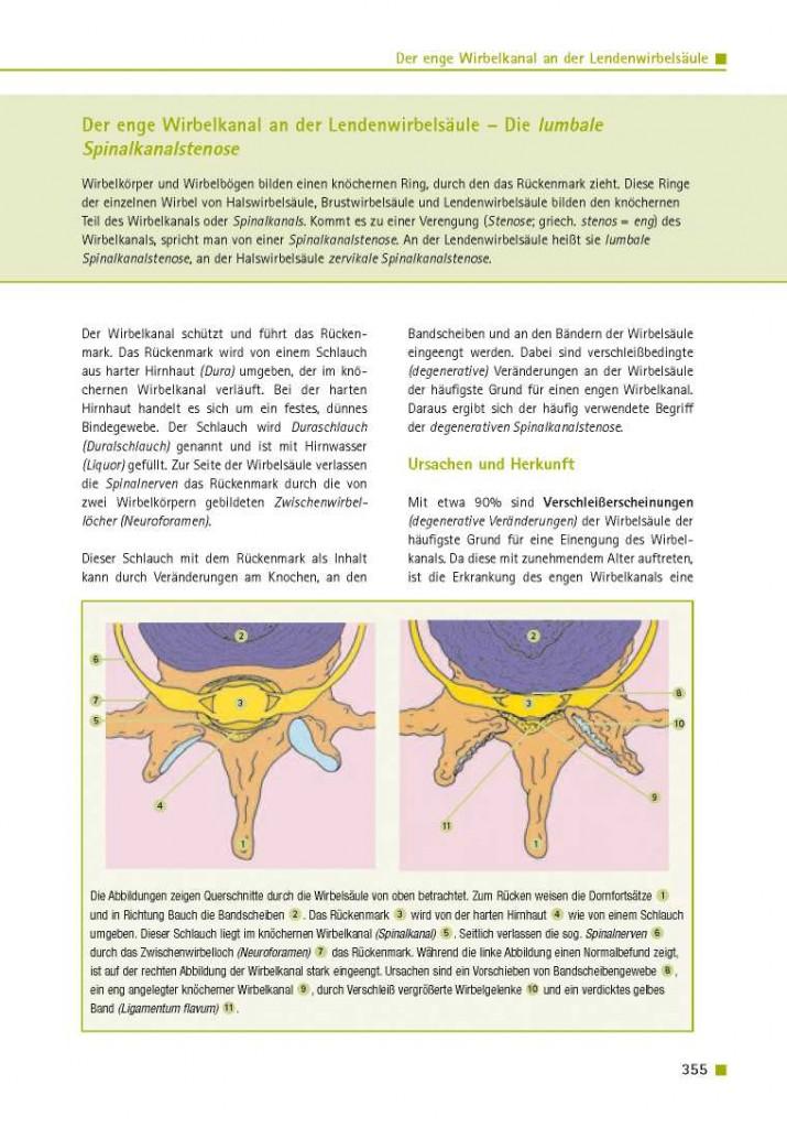 Der enge Wirbelkanal an der Lendenwirbelsäule – Die lumbale Spinalkanalstenose