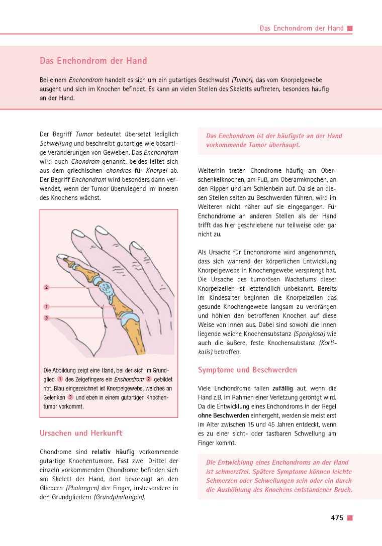 Orthopädie für Patienten | Das Enchondrom der Hand - Orthopädie für ...