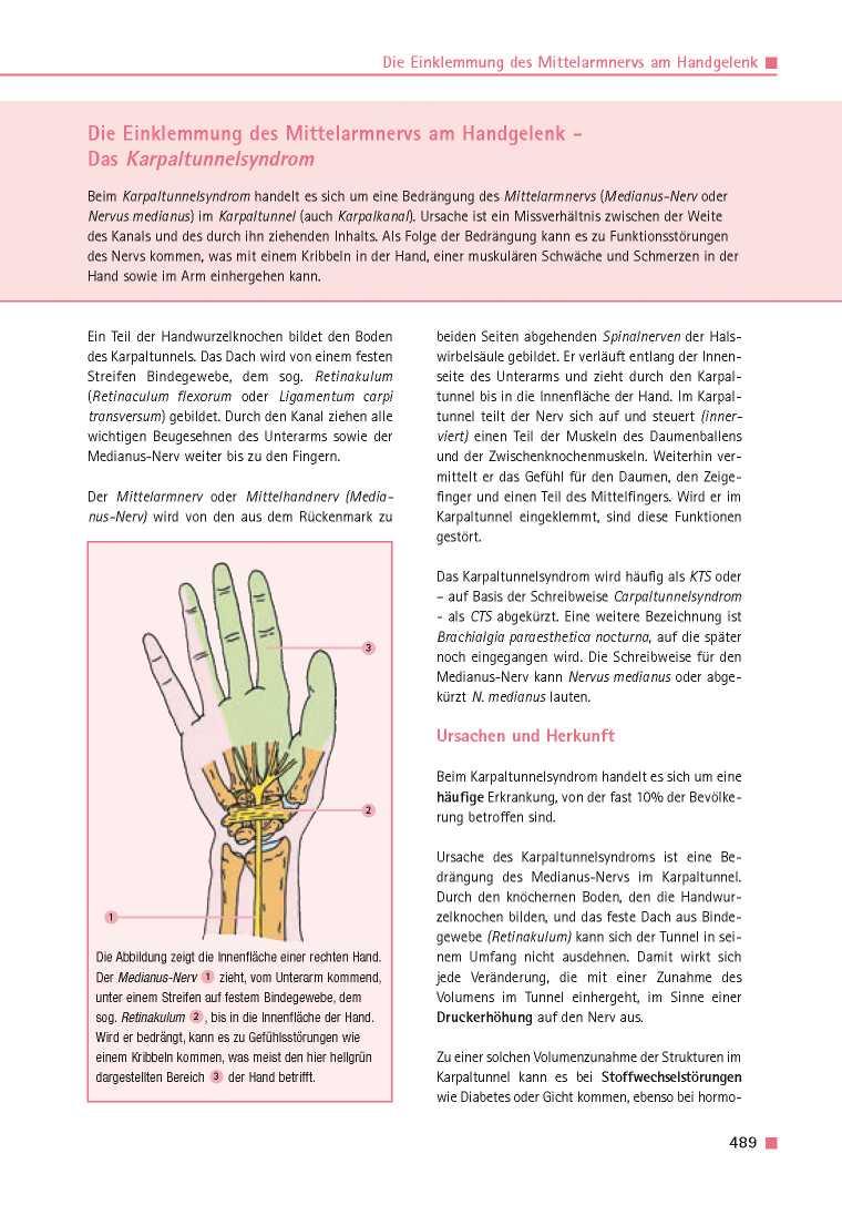 Orthopädie für Patienten | Die Einklemmung des Mittelarmnervs am ...