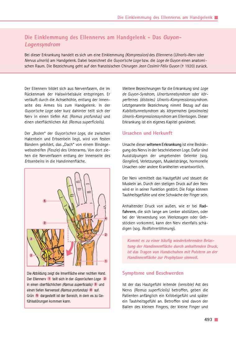 Orthopädie für Patienten | Die Einklemmung des Ellennervs am ...