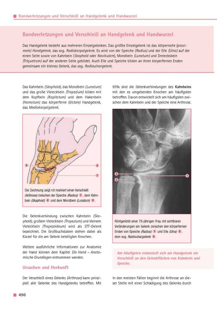 Bandverletzungen und Verschleiß an Handgelenk und Handwurzel