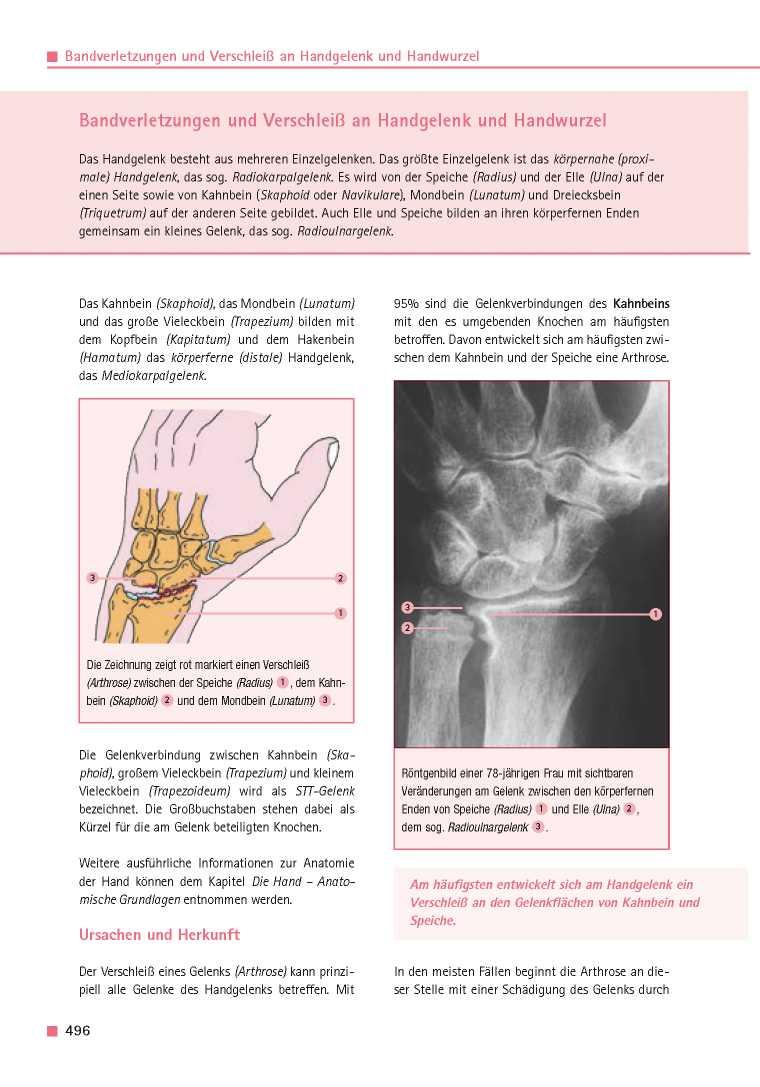 Orthopädie für Patienten | Bandverletzungen und Verschleiß an ...