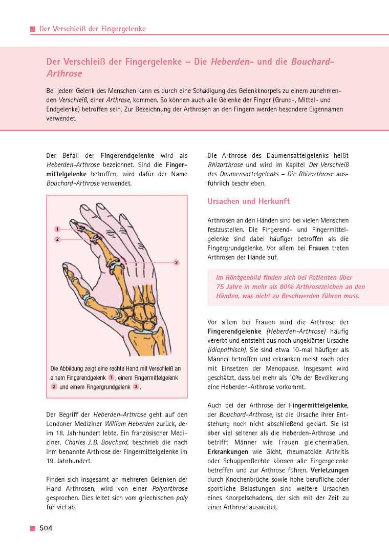 Orthopädie für Patienten | Der Verschleiß der Fingergelenke - Die ...
