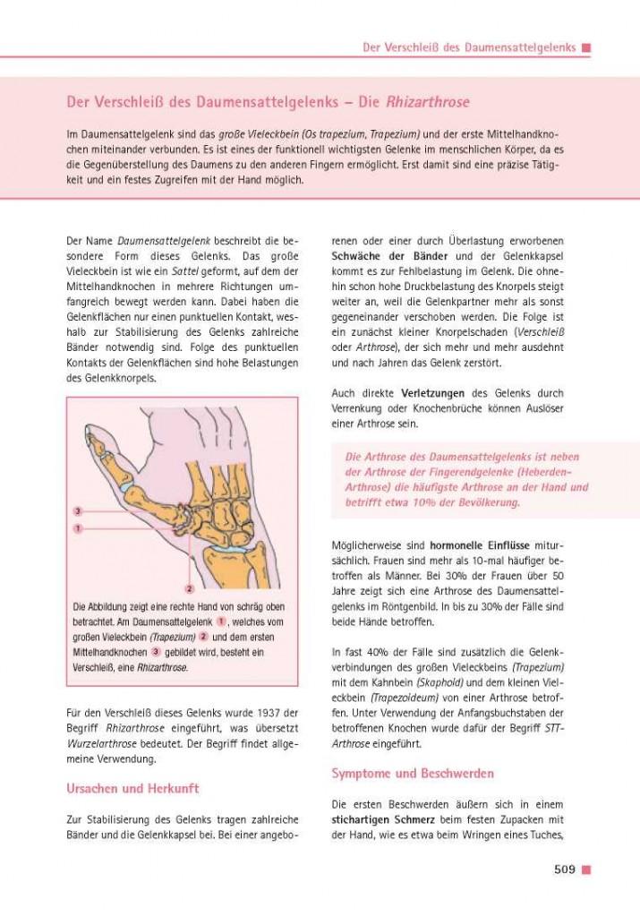 Der Verschleiß des Daumensattelgelenks – Die Rhizarthrose