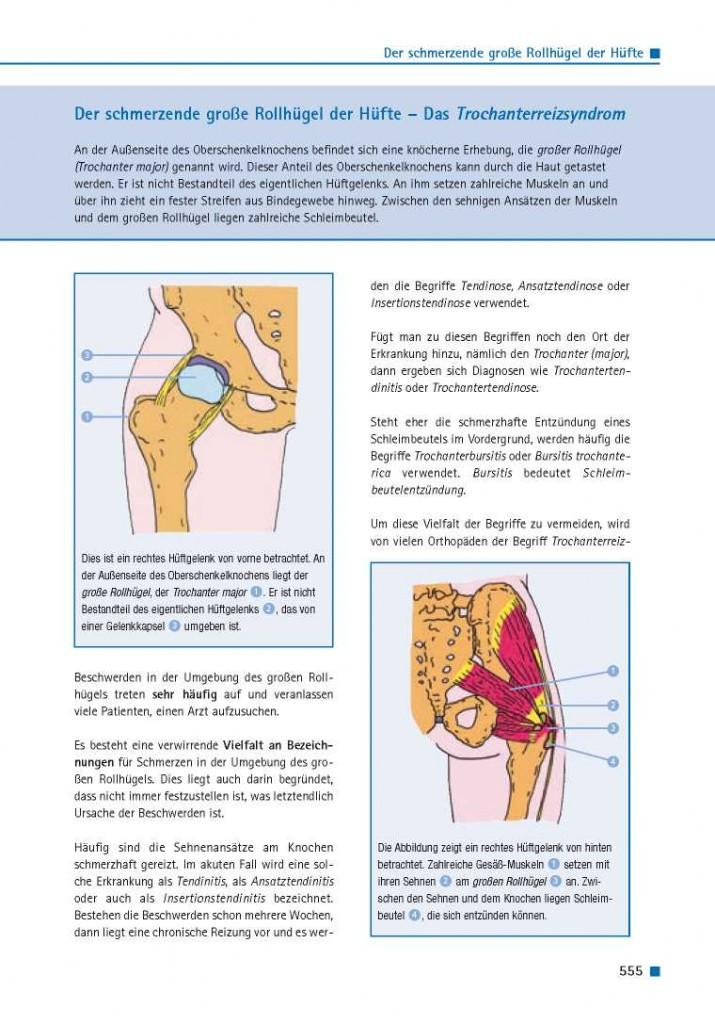 Der schmerzende große Rollhügel der Hüfte – Das Trochanterreizsyndrom
