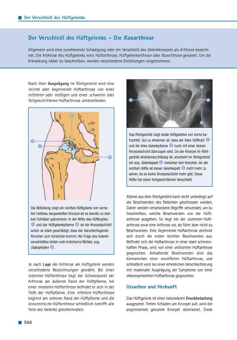 Orthopädie für Patienten | Der Verschleiß des Hüftgelenks - Die ...