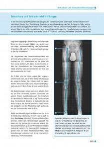 Beinachsen und Beinachsenfehlstellungen