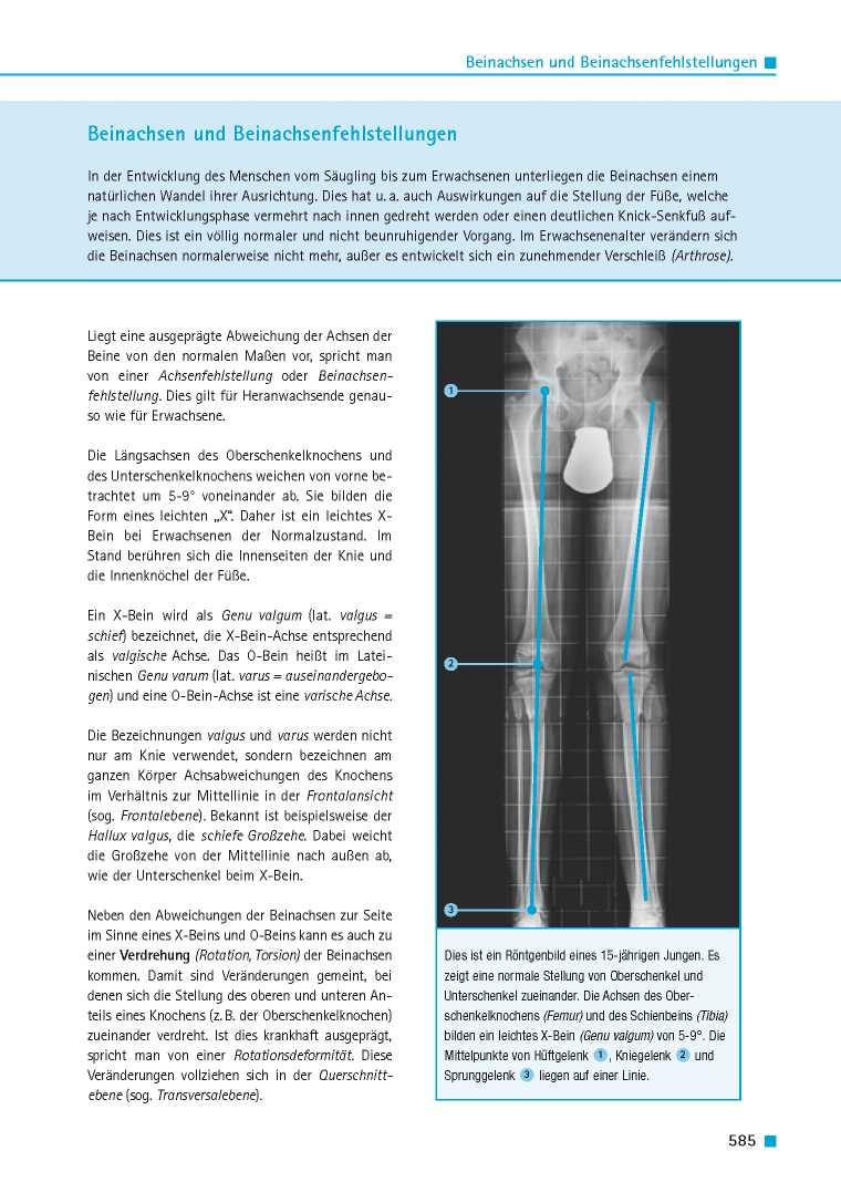 Orthopädie für Patienten | Beinachsen und Beinachsenfehlstellungen ...