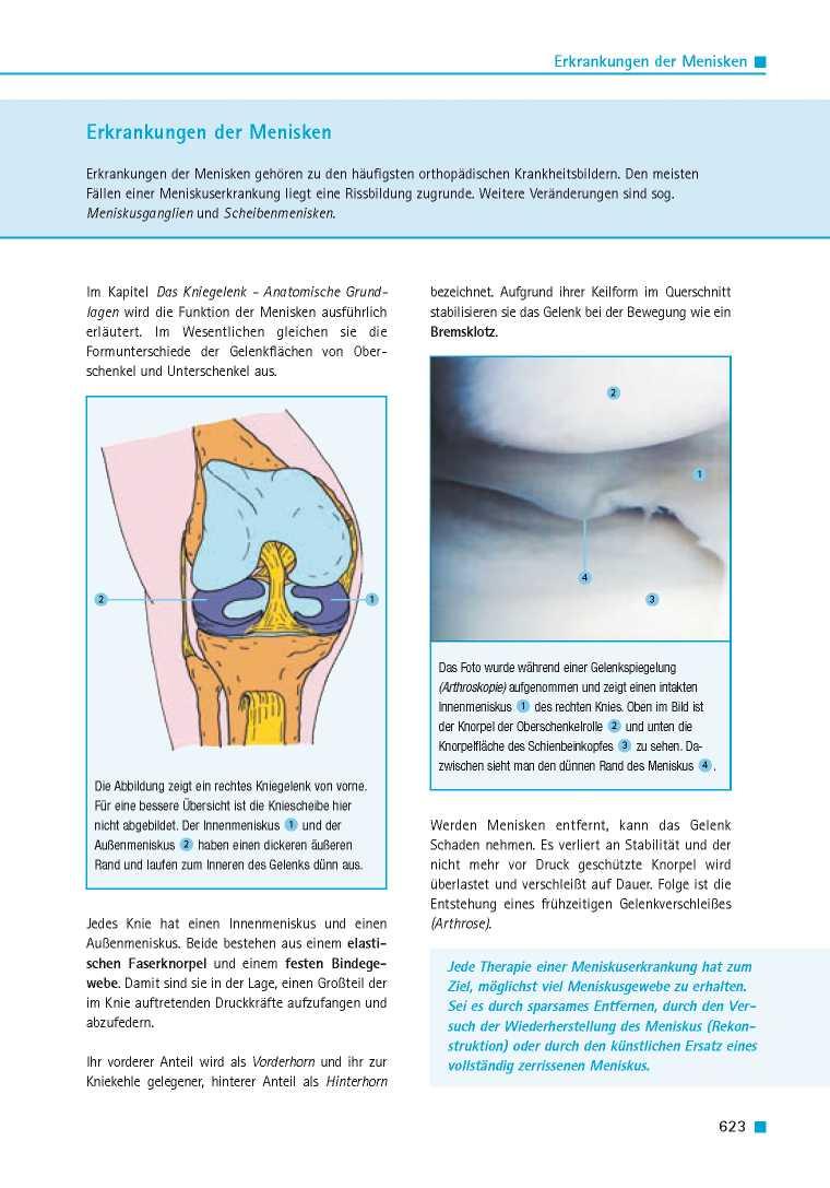 Orthopädie für Patienten | Erkrankungen der Menisken - Orthopädie ...