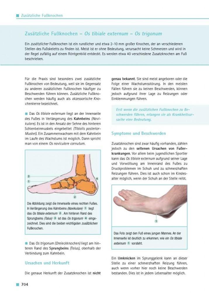 Zusätzliche Fußknochen – Os tibiale externum – Os trigonum