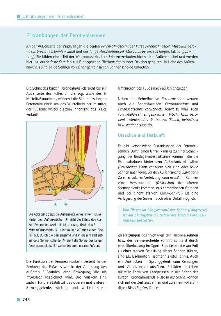 Orthopädie für Patienten | Erkrankungen der Peronealsehnen ...