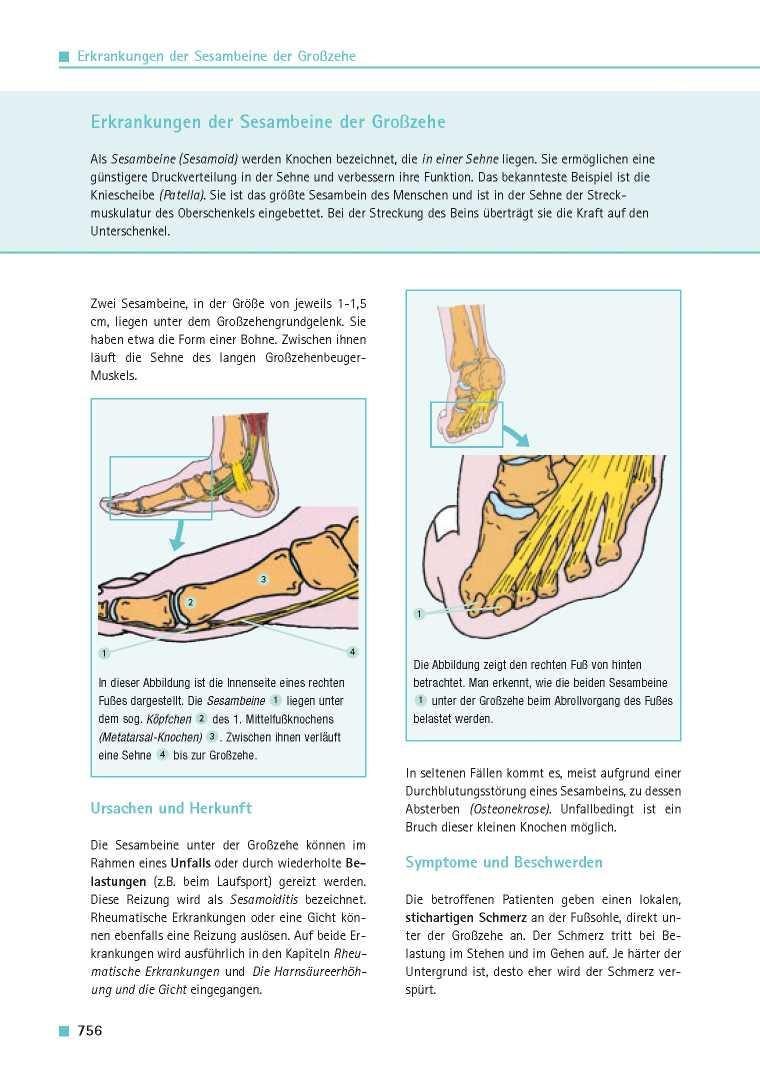 Orthopädie für Patienten | Erkrankungen der Sesambeine der Großzehe ...